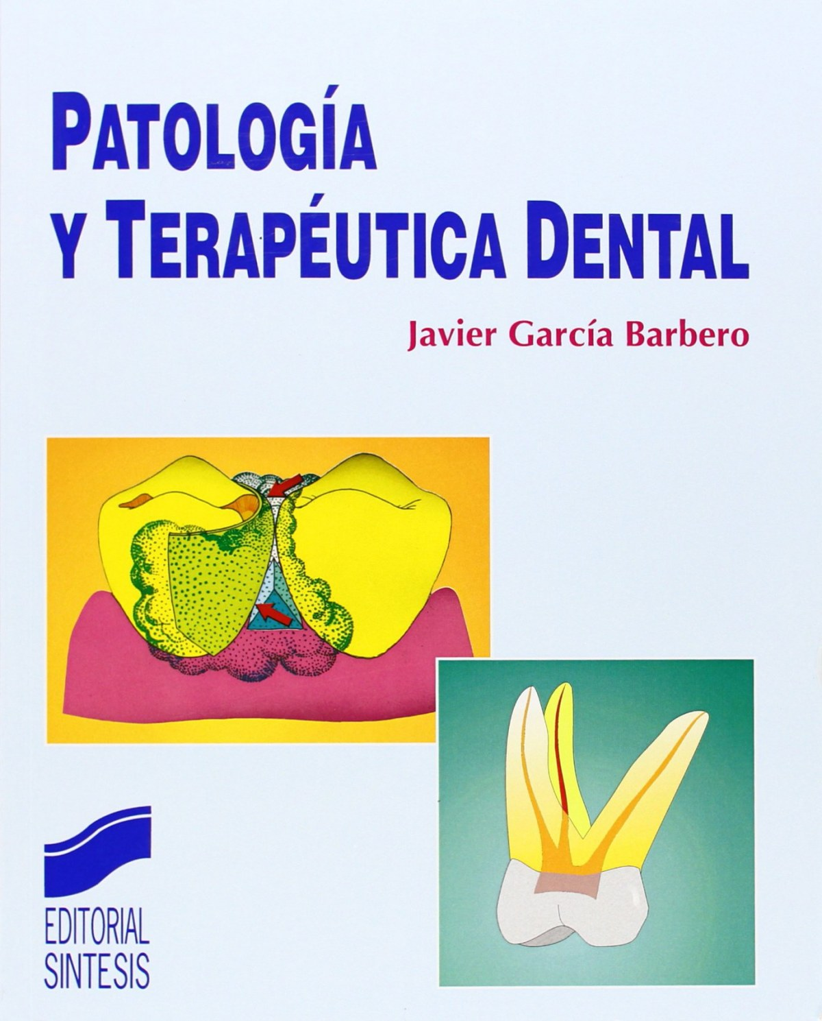 NO SE VENDE PATOLOGIA Y TERAPEUTICA DENTAL