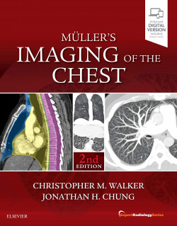 MULLER´S IMAGING OF THE CHEST