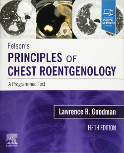FELSON´S PRINCIPLES OF CHEST ROENTGENOLOGY A PROGRAMMED