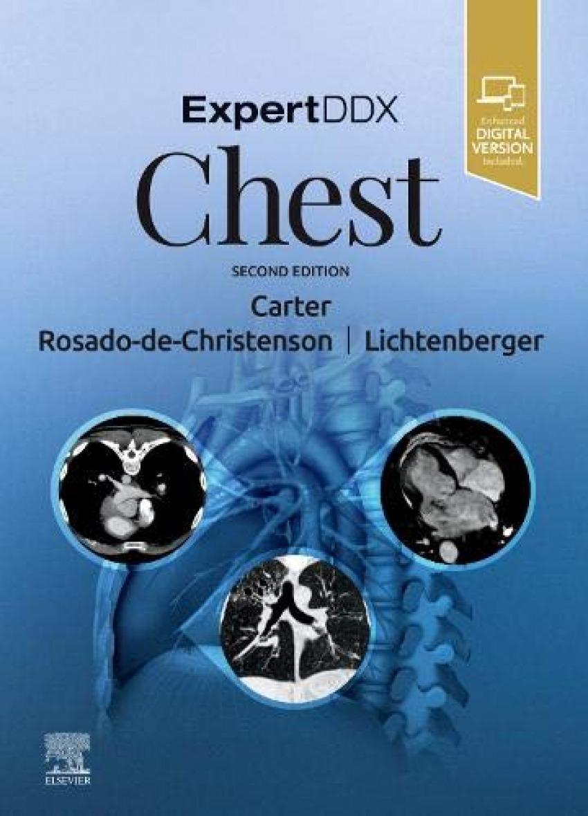 Expertddx:chest