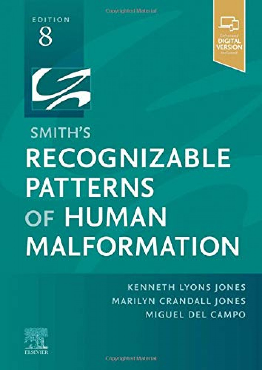 Smith´s recognizable patterns of human malformation