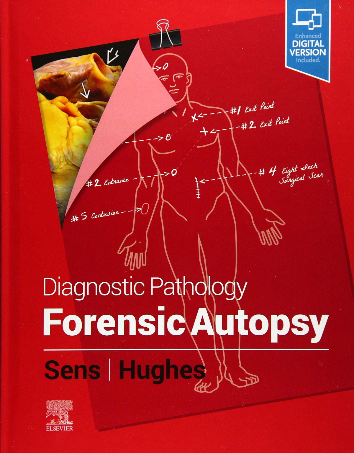 Diagnostic pathology: forensic autopsy