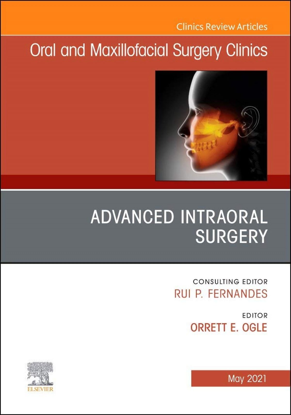 Advanced intraoral surgery