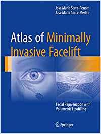 ATLAS OF MINIMALLY INVASIVE FACELIFT