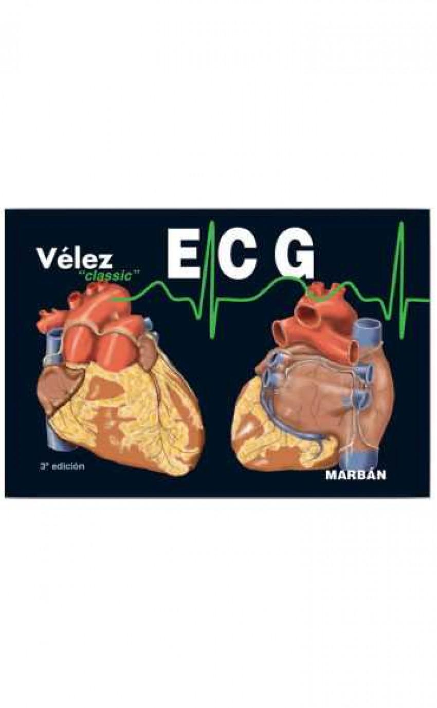 ECG. Classic