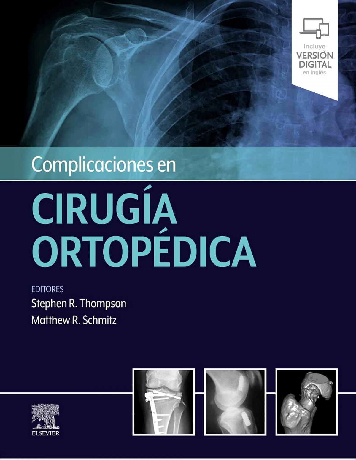 Complicaciones en cirugía ortopédica