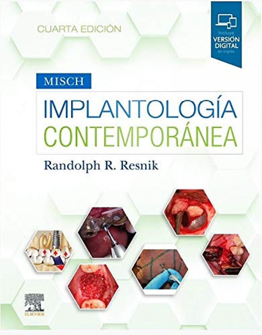Implantología contemporanea 4ª Edición