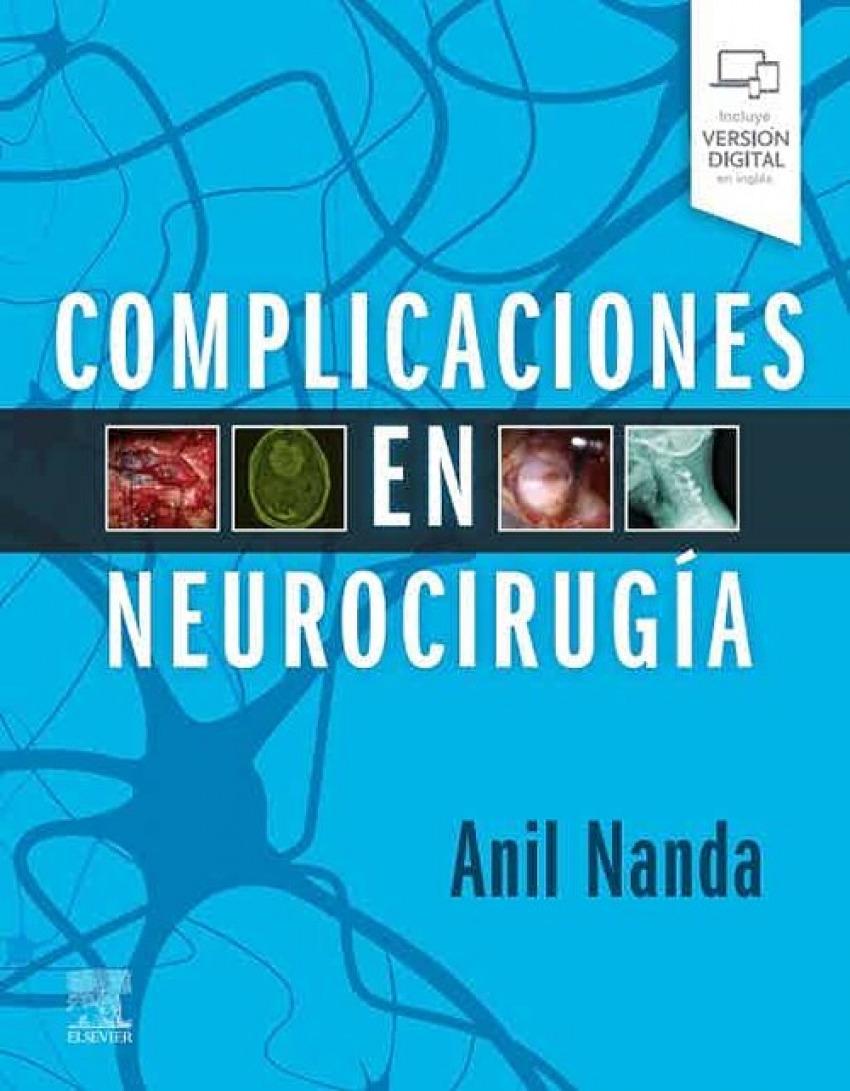 Complicaciones en neurocirug¡a