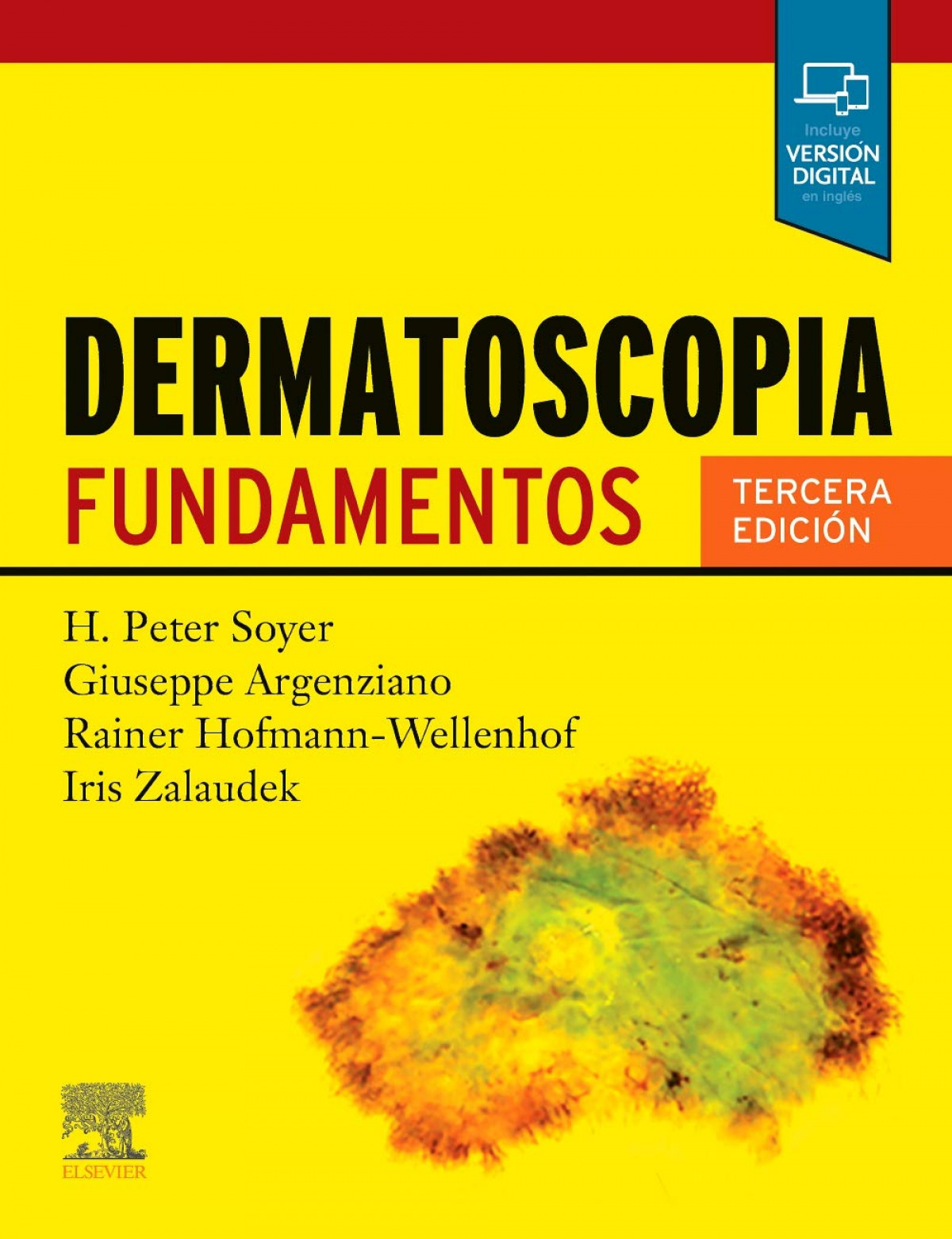 SOYER, DERMATOSCOPIA, 3ª ED.