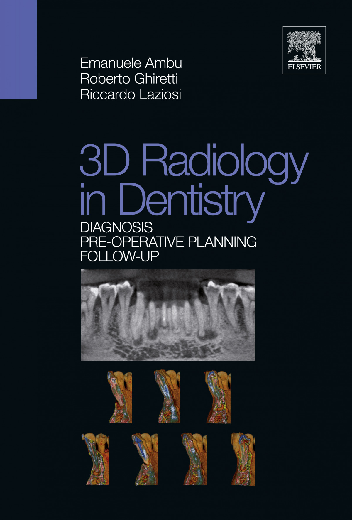 3D RADIOLOGY IN DENTISTRY DIAGNOSIS PRE OPERATIVE PLANNING