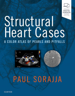 STRUCTURAL HEART CASES.(A COLOR ATLAS OF PEARLS AND PITFALLS