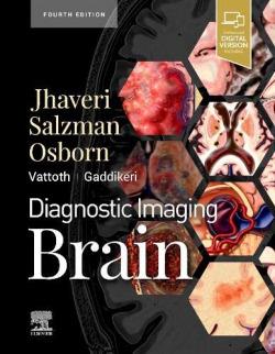 Diagnostic imaging brain