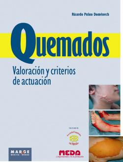 QUEMADOS. VALORACION Y CRITERIO