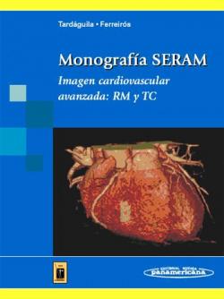 Monografía SERAM