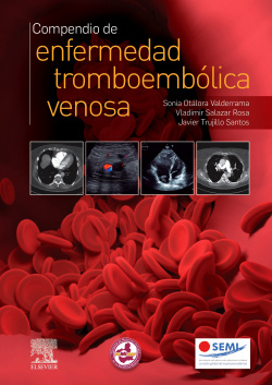 Compendio de enfermedad tromboembólica venosa