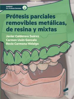 PROTESIS PARCIALES REMOVIBLES METALICAS DE RESINA Y MIXTAS