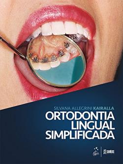 Ortodontia Lingual Simplificada - 1ª/2016