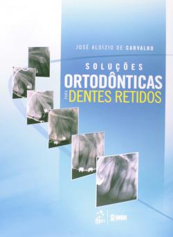SoluÇoes Ortodonticas para Dentes Retidos - 2ª/2013