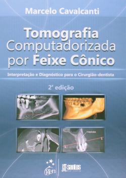 Tomografia Computadorizada por Feixe Conico - InterpretaÇao e Diagnóstico para o Cirurgiao-Dentista